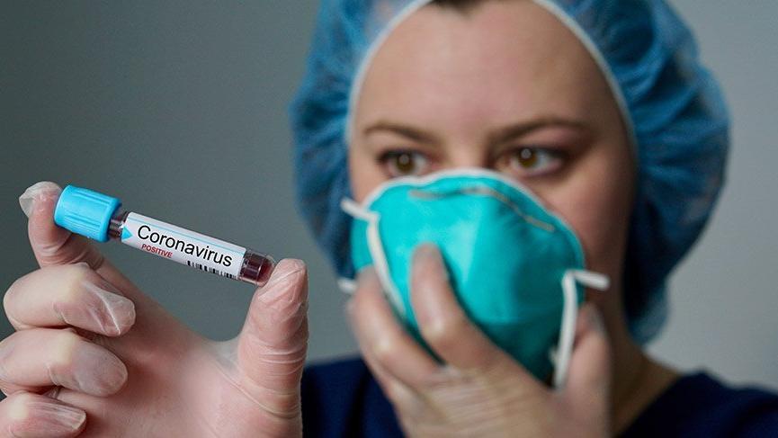 Koronavirüsten son 24 saatte 132 vatandaşımız hayatını kaybetti